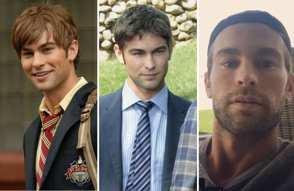 antes-e-depois-nate-gossip-girl-chace-crawford