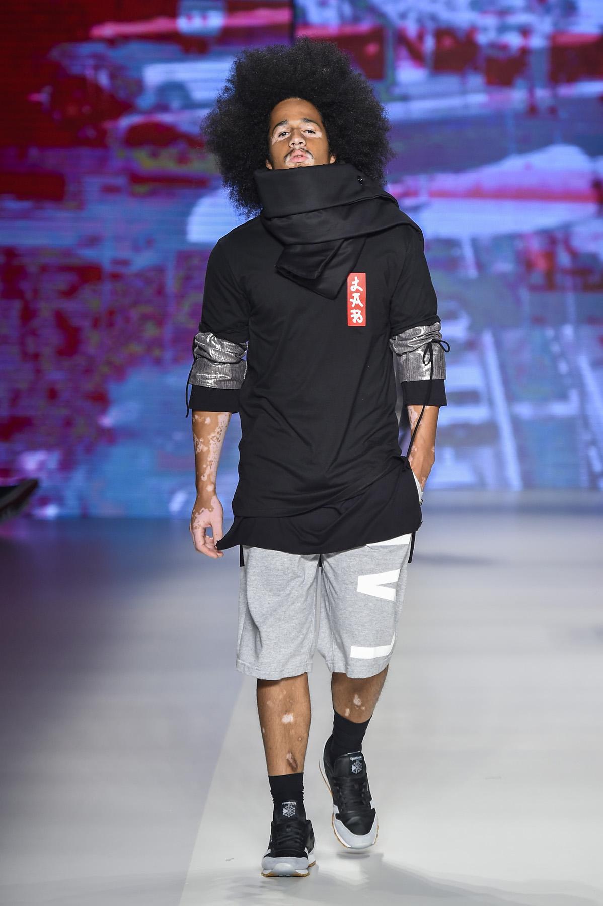Modelo com vitiligo também passou pela passarela. Foto: