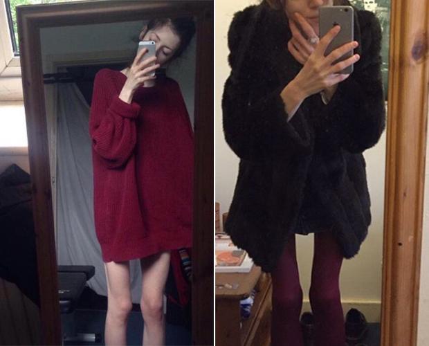 #selflove: Jovem usa Instagram como diário para superar anorexia