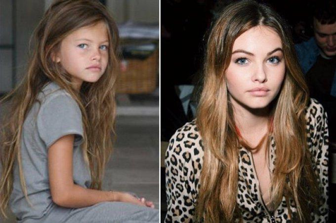 antes-depois-menina-mais-bonita-do-mundo