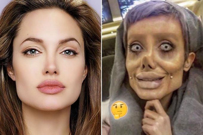 Após 50 cirurgias, iraniana garante que é a nova Angelina Jolie