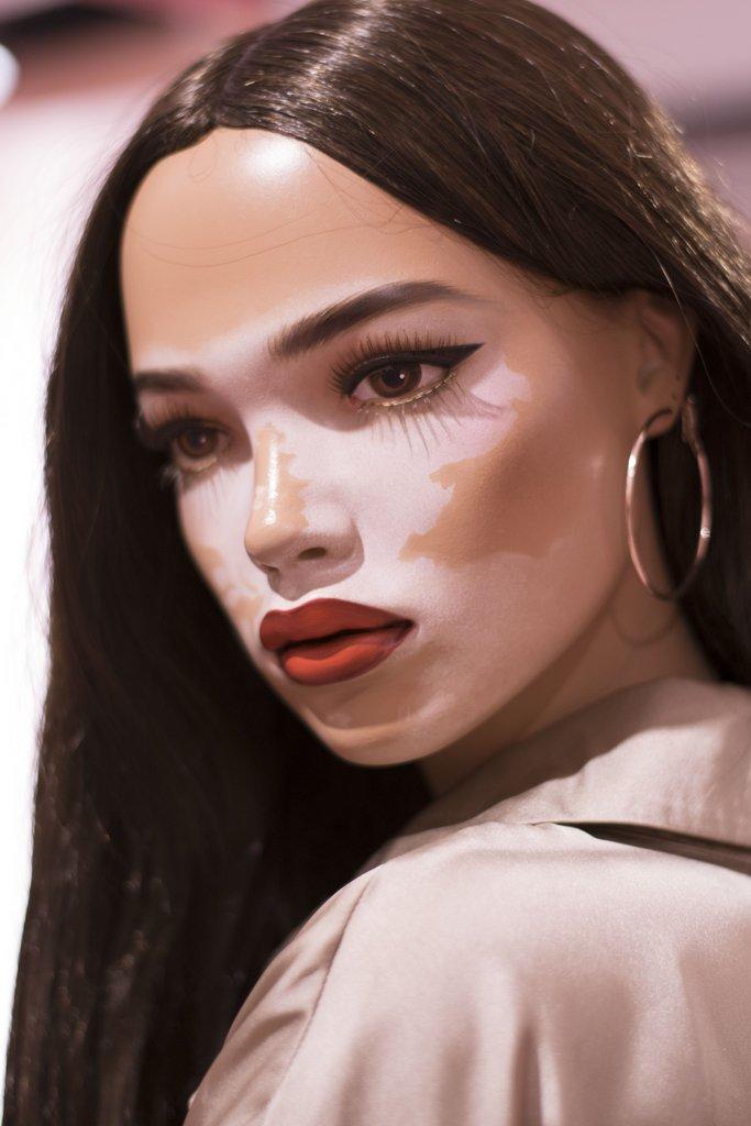 missguided-manequim-vitiligo