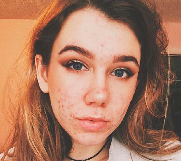 Emma-O'Mahoney-acne