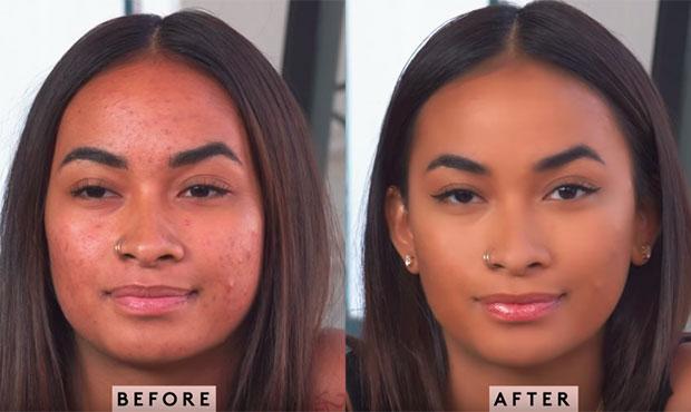 fenty-beauty-tutorial-pele-espinhas-2