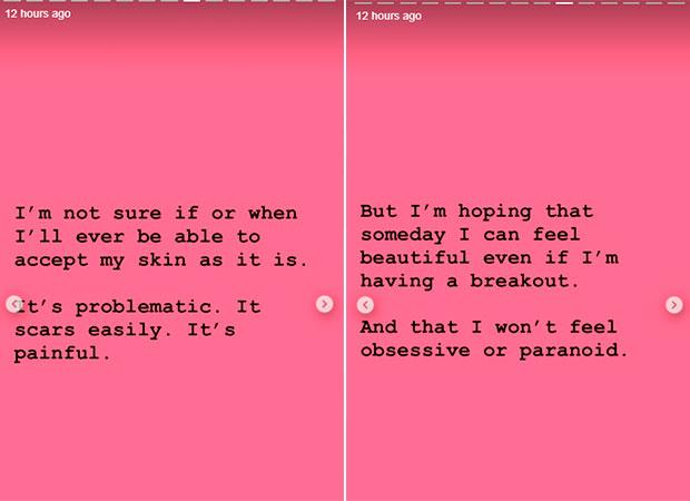lili-reinhart-acne-post-instagram-4