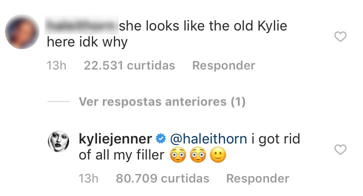 kylie-jenner-parou-de-usar-preenchimento-labial