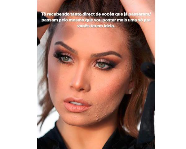 famosas-que-falam-sobre-acne-espinhas-flavia-pavanelli