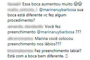 marina-ruy-barbosa-fas-questionam-preenchimento-labios