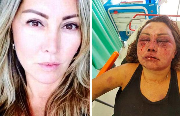 Mulher tem rosto desfigurado após apanhar por 4 horas em primeiro encontro