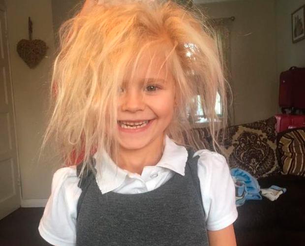 Wynter-Seymour-sindrome-cabelo-impeteavel-2
