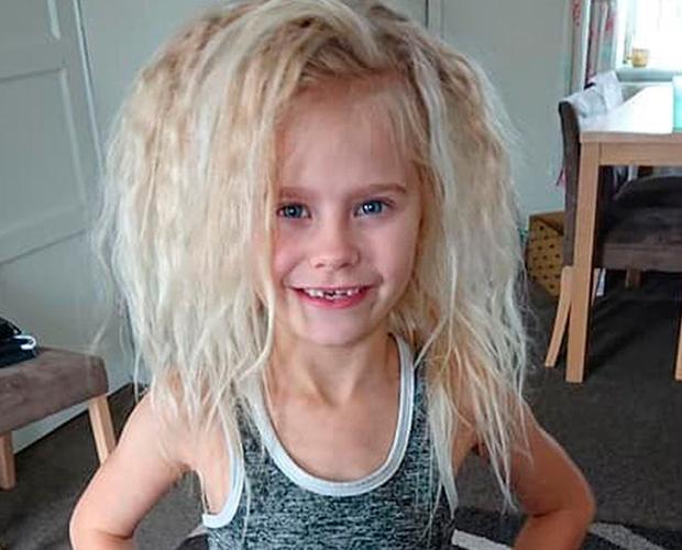 Wynter-Seymour-sindrome-cabelo-impeteavel