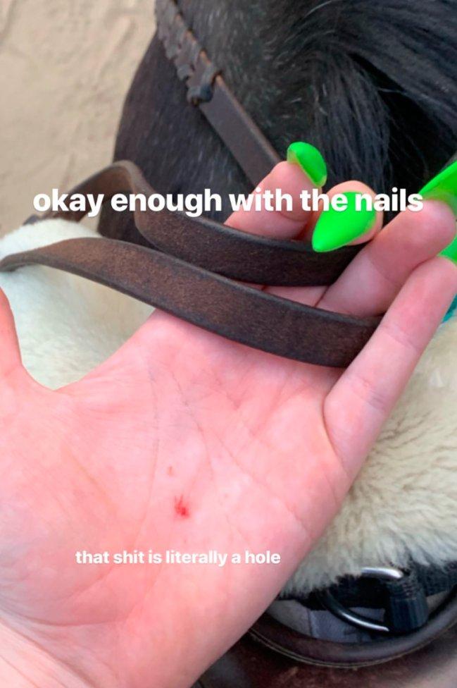billie-eilish-unha-verde-machucado