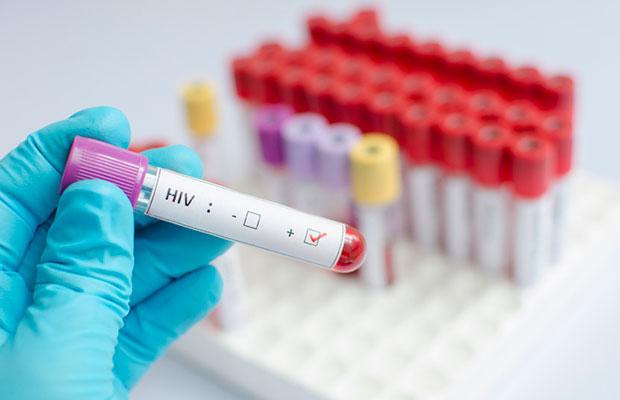 Pela primeira vez, cientistas conseguem remover o vírus HIV de genes