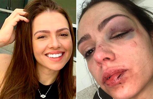 Jovem relata que foi espancada em famosa casa noturna de São Paulo