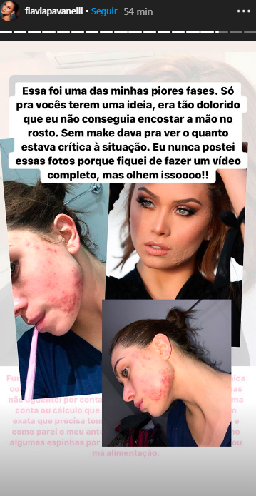 flavia-pavanelli-post-acne-2