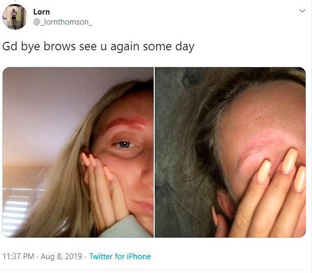 garota-procedimento-perde-sobrancelhas