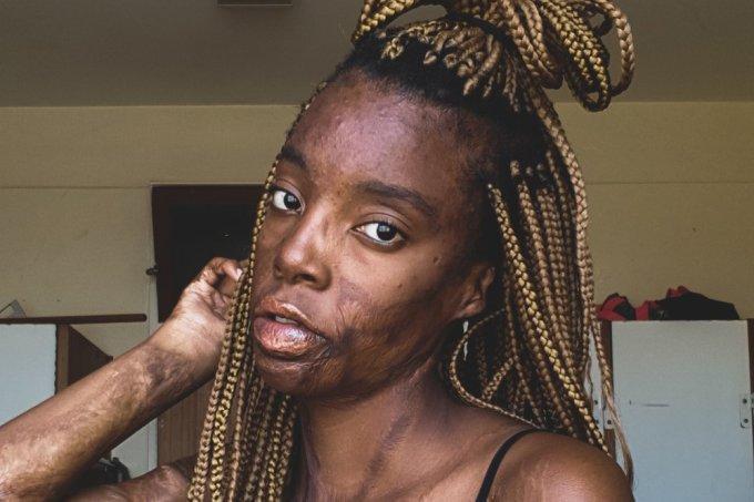Garota sul-africana exalta cicatrizes de queimadura e da licao de autoestima