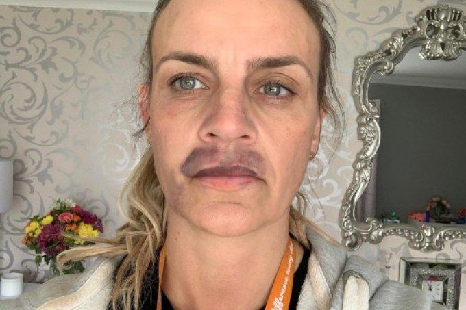 Mulher faz preenchimento labial e fica com hematomas 2