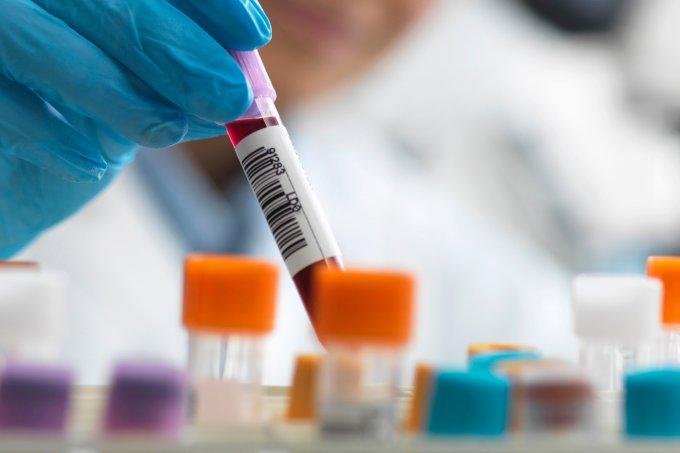 Teste realizado no Brasil pode ter eliminado HIV de paciente soropositivo
