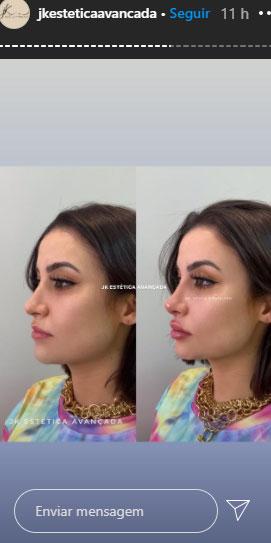 bianca-andrade-procedimentos-esteticos-2