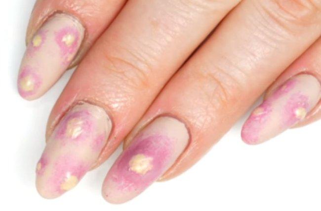 Foto com destaque nas unhas que estão com nail art inspirada em aparelho dentário