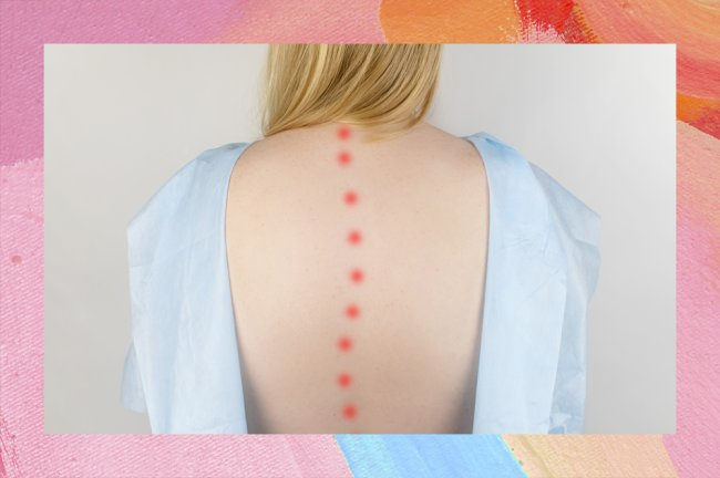 Foto de uma mulher loira de costas, com um roupão de hospital aberto, mostrando a coluna desalinhada