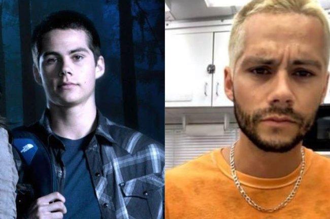 Duas fotos do ator Dylan O'Brien. Em uma, ele aparece mais novo vestindo uma blusa xadrez e de mochila. Na outra, está posando com uma blusa laranja e mais velho